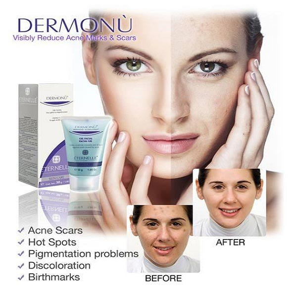 Dermonu Acne Removal Cream in Pakistan